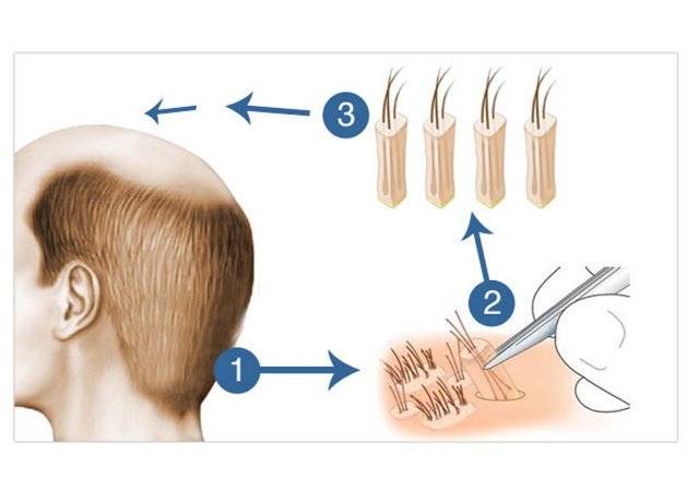 Hair Transplantation Fue Technique